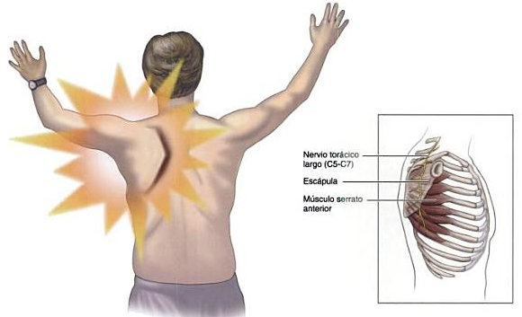 Nervio musculocutáneo 5