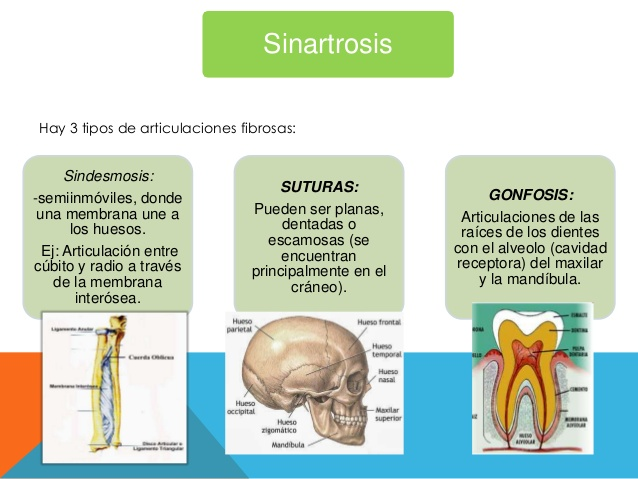 sinartrosis