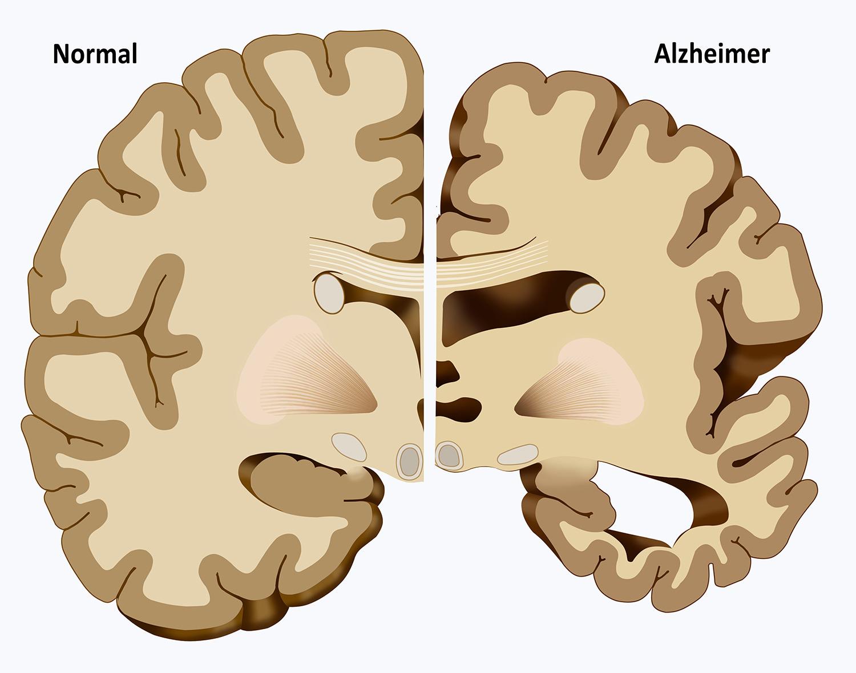 ver-Sistema Nervioso Central-22