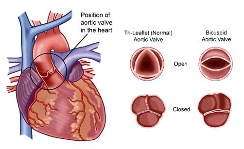 Valvula Mitral Que Es Anatomia Funcion Operacion