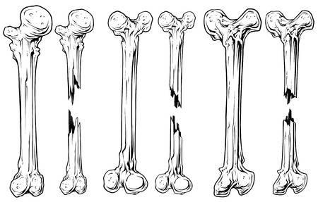 cáncer de huesos
