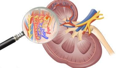 cómo limpiar el riñón