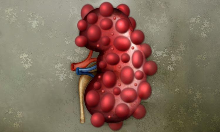 riñones poliquísticos