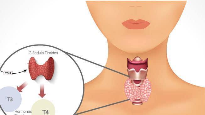 Tratamiento del tiroides