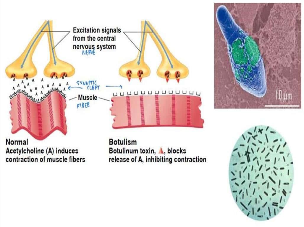 placa neuromuscular