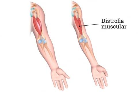 Tipo de contracción muscular-17