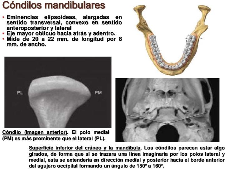 Huesos maxilares18