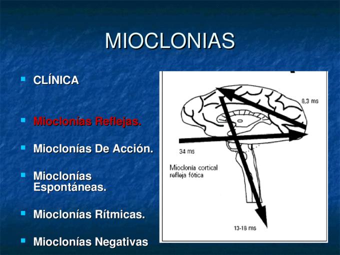 Tipos de contracción muscular-8