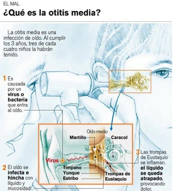 huesos del oído