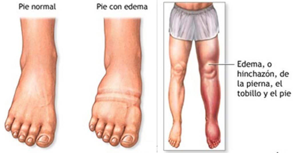 Linfedema en las piernas