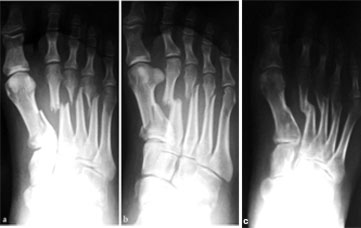 Metatarsos del pie