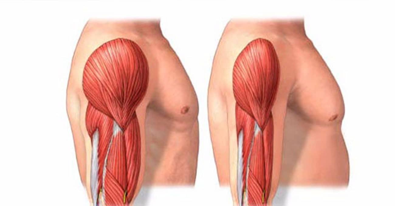 Pérdida de masa muscular: ¿qué es? Síntomas, causas y mucho más