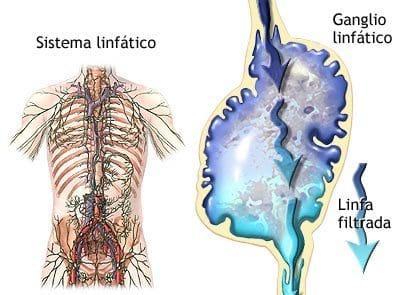 Enfermedades del Sistema Linfático