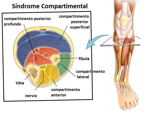 trastornos en los músculos esqueléticos