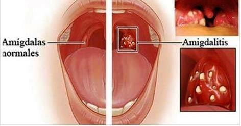 amígdalas inflamadas