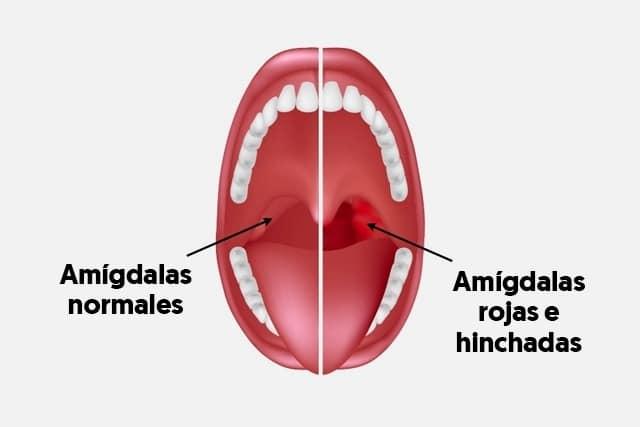 causas de la amigdalitis