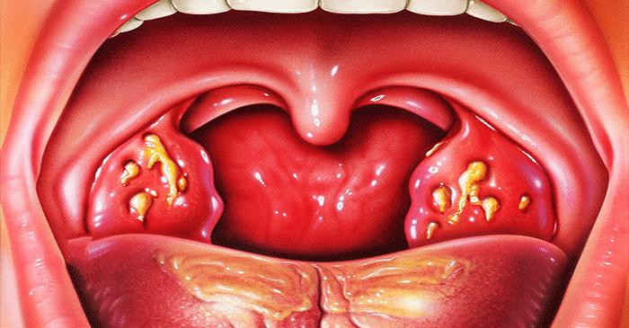 Amigdalitis bacteriana