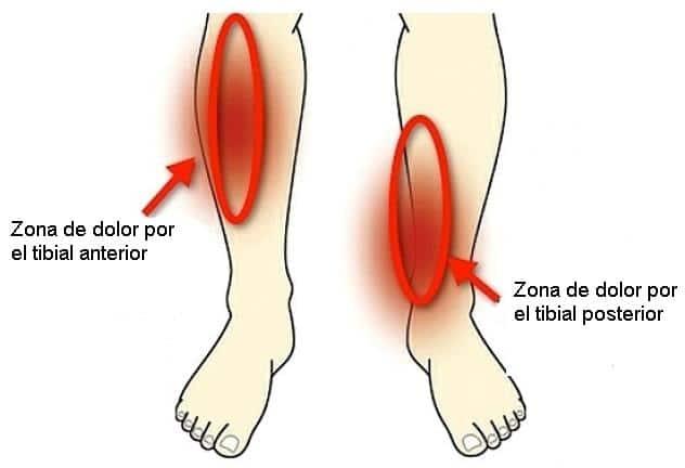 Músculos Tibiales Función Dolor Origen E Inserción Y Más