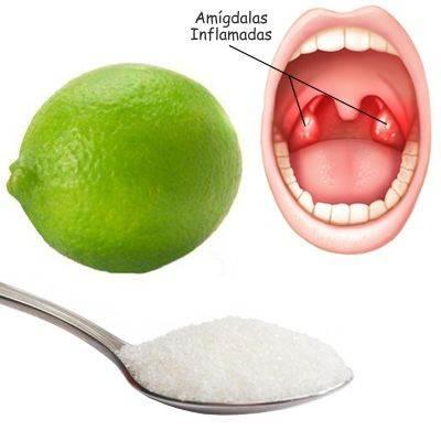 Amigdalitis Aguda Qué Es Causas Síntomas Tratamiento Y Mucho Más
