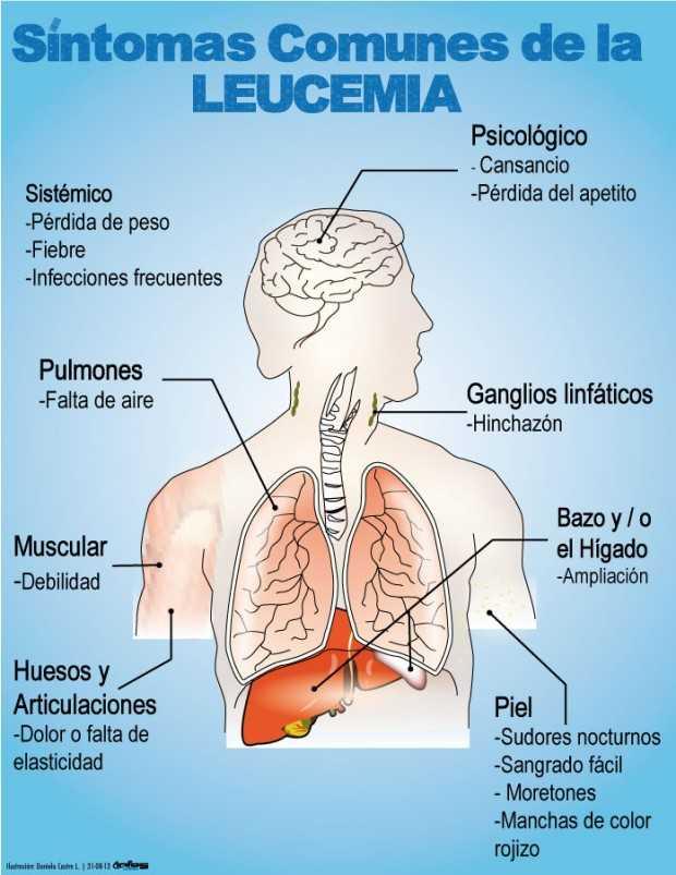 clases de leucemia en adultos