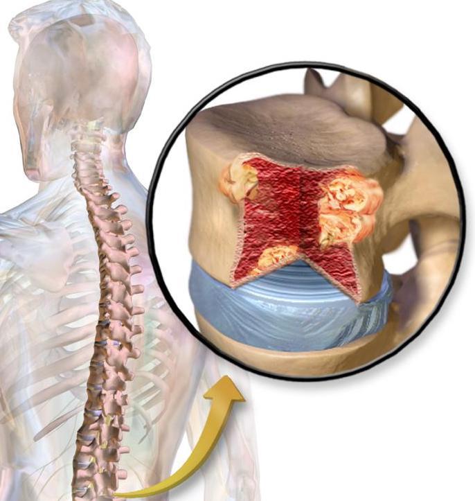 Síntomas del mieloma múltiple
