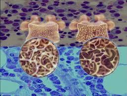 Tratamiento del mieloma múltiple-1
