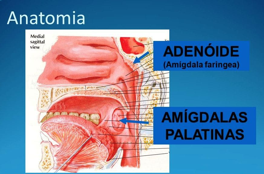 adenoides y amígdalas