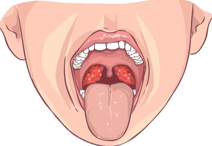 Amigdalitis viral