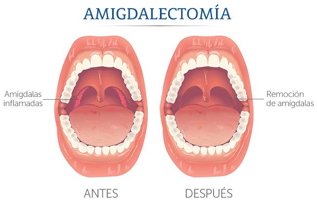 función de las amígdalas
