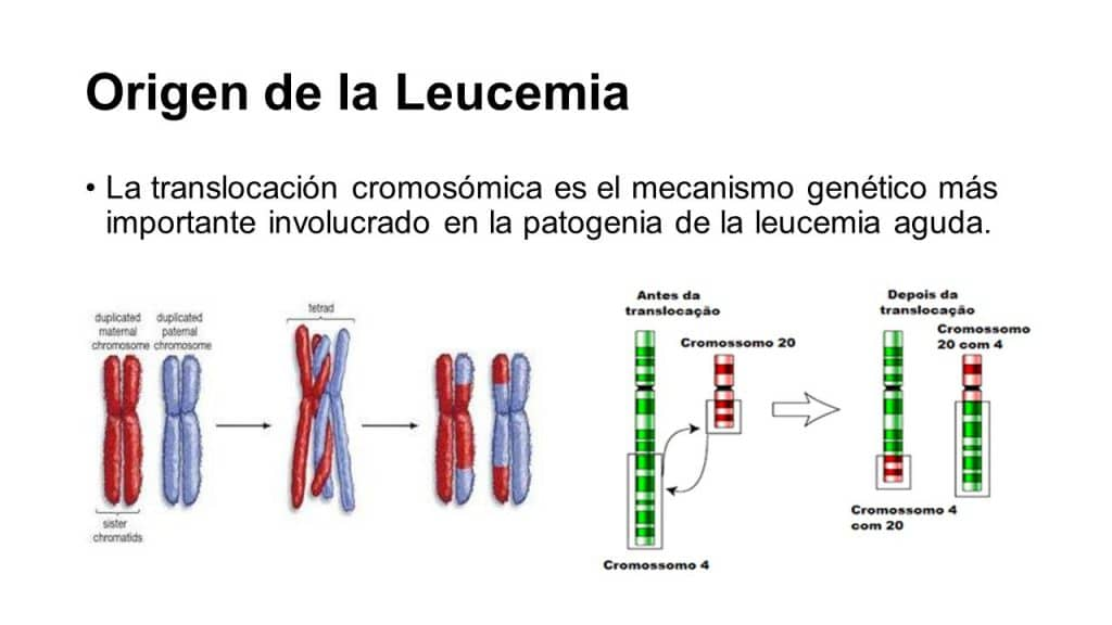 tipos-de-leucemia