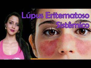 síntomas del lupus eritematoso sistémico