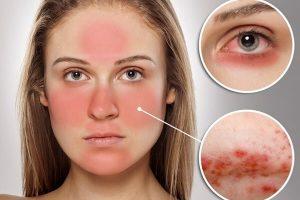 causas del lupus