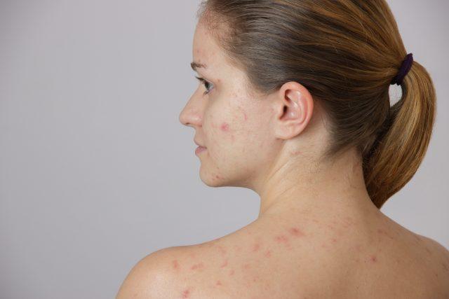 Herpes en el cuello