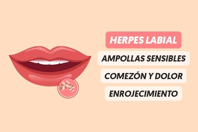 Herpes en los labios-1