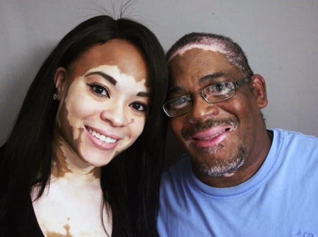 ¿El vitiligo es hereditario?