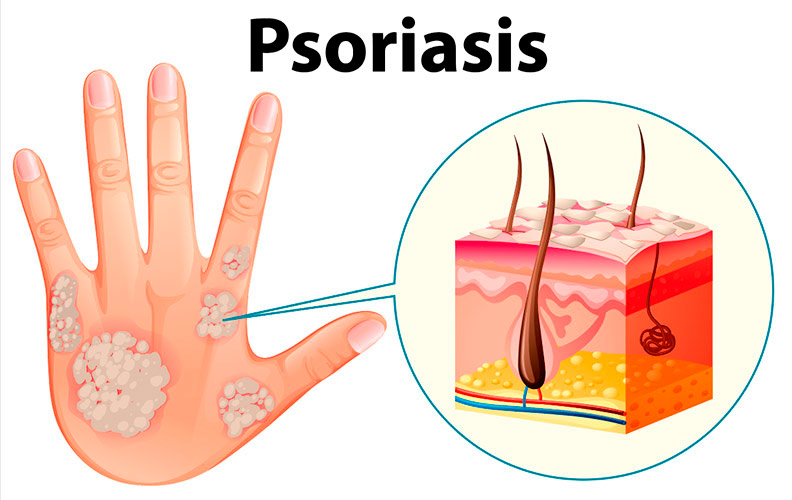 Tipos de Psoriasis