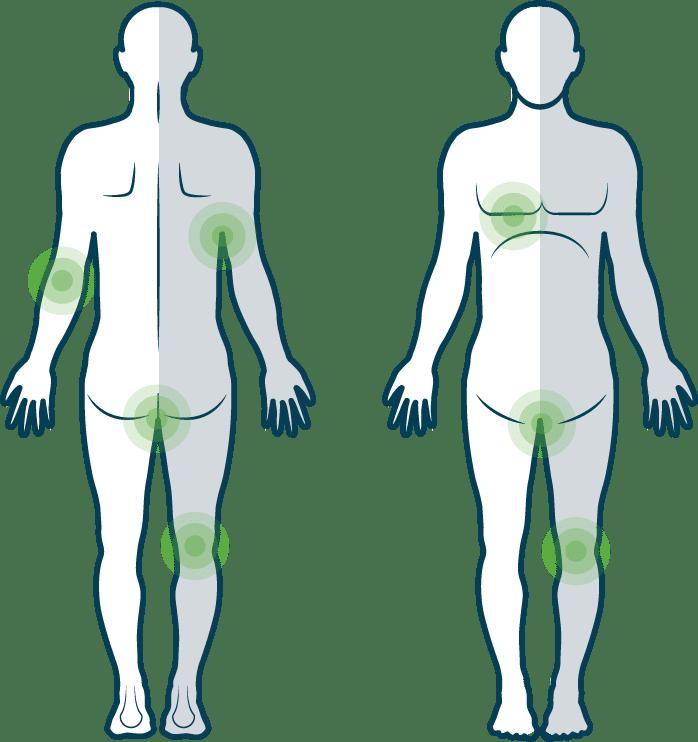 Psoriasis inversa