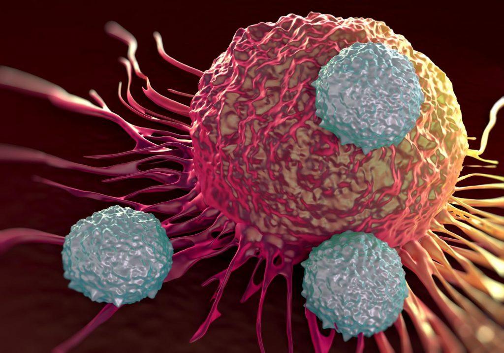 el lupus es cancer