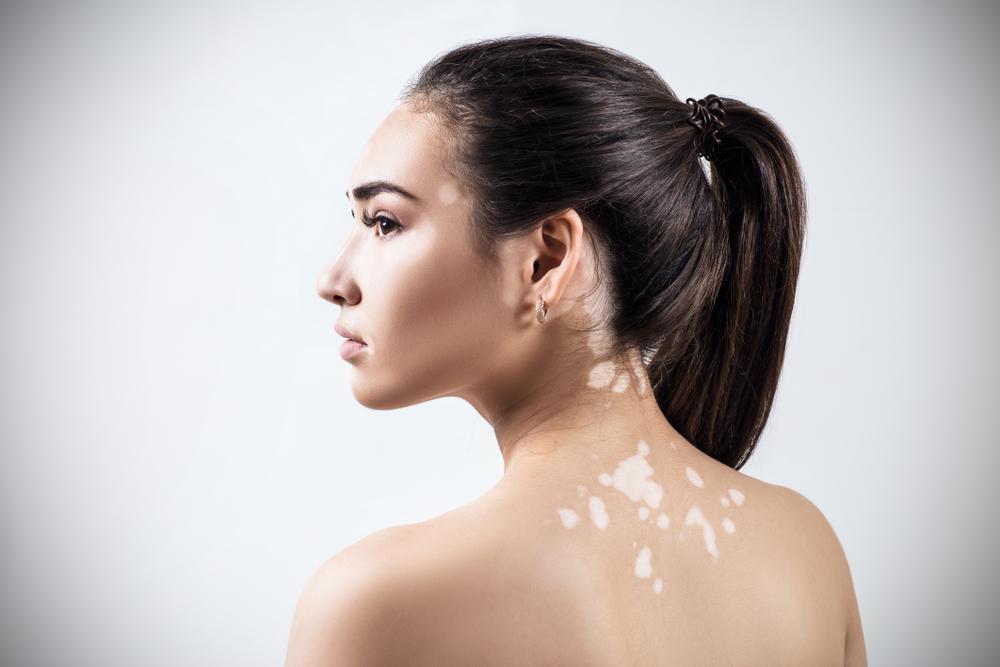 ¿El vitiligotiene cura?