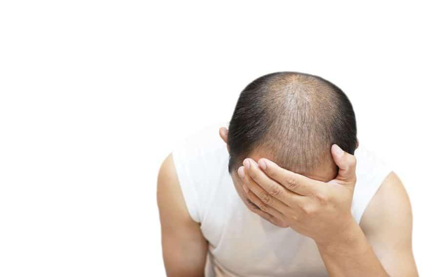Alopecia Difusa