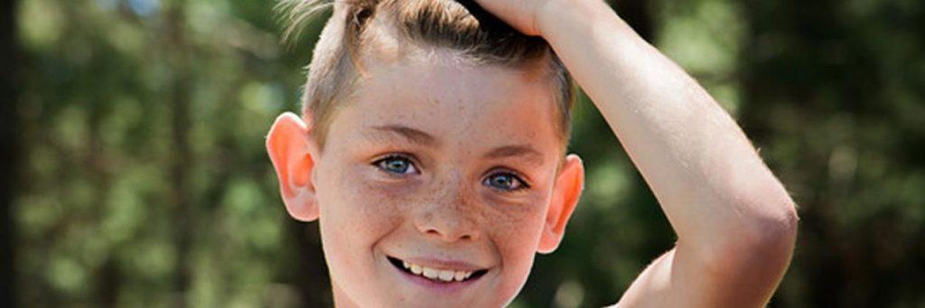 Alopecia en los niños