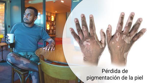 ¿El vitiligo tiene cura?