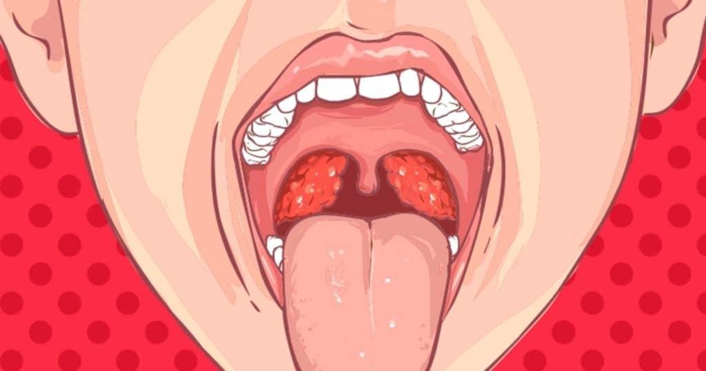 Ampollas en la garganta