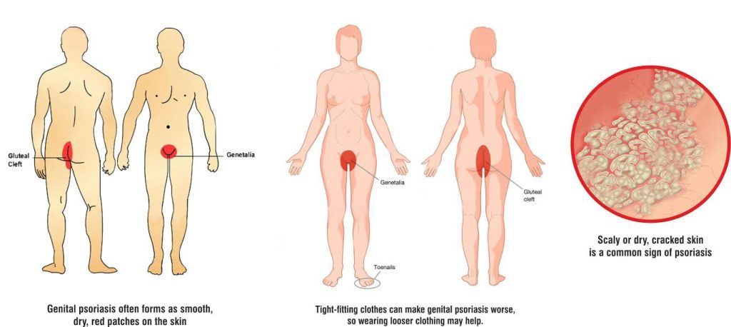 Psoriasis genital