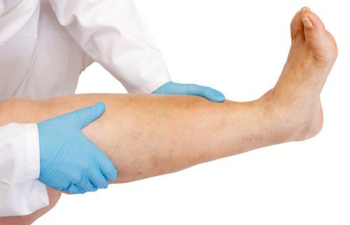celulitis infecciosa en las piernas