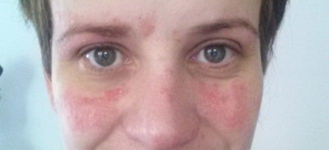 Psoriasis en la cara