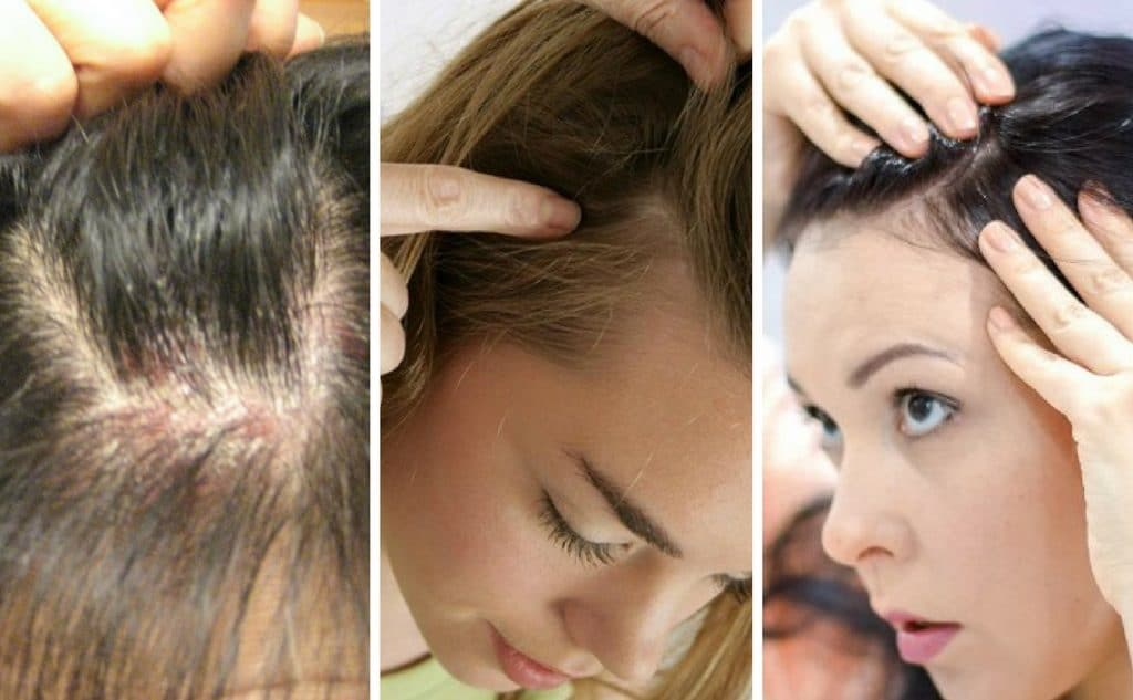 Psoriasis del cuero cabelludo
