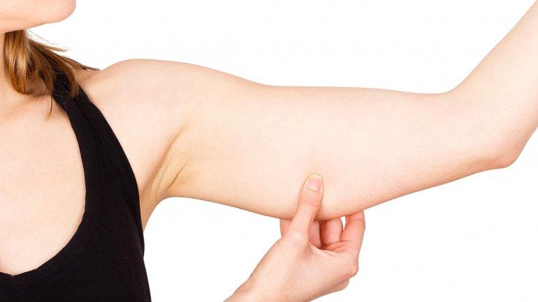 Celulitis en los brazos