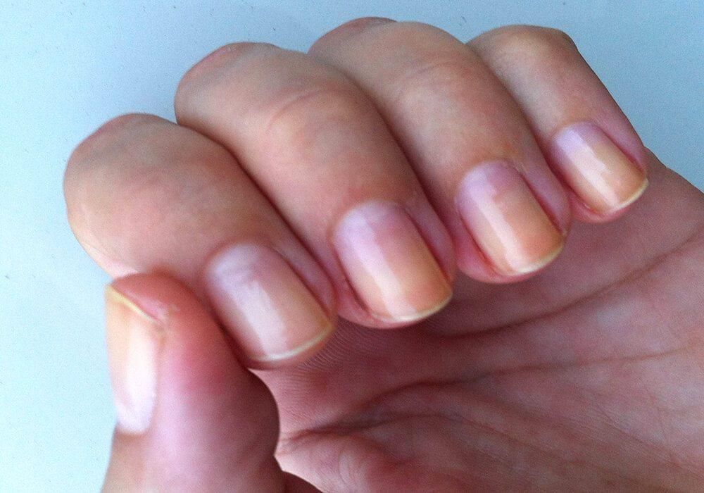 Micosis en las uñas