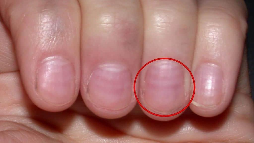 Micosis en las uñas 7-7